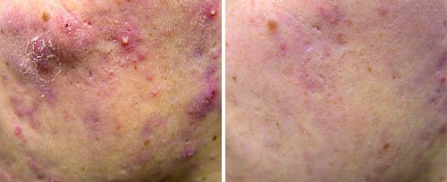 Active Acne2 Sult Rn