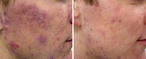 Active Acne3 Sult Rn