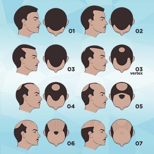 Hairestart 002