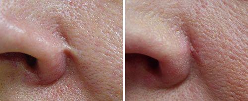 Nasal Scar Sult Rn